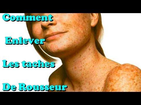 Des taches de pigment sur la personne
