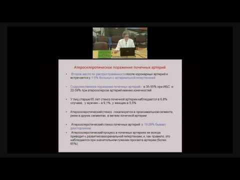 Реноваскулярная гипертензия, диагностика и лечение.