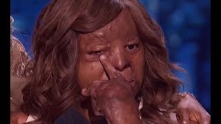 She Made Judges Very Emotional and Starts to CRY - PLANE CRASH SURVIVOR | Semifinals 2 | AGT 2017