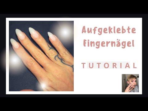 Otslojenije des Nagels von der Haut auf den Händen die Behandlung