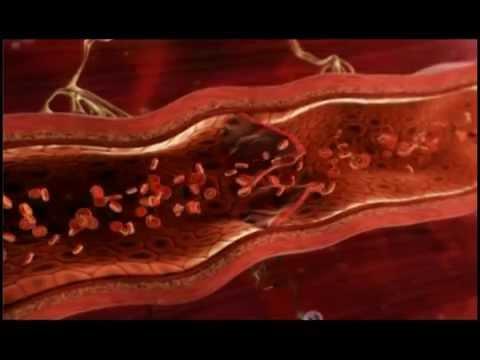 ผลกระทบของการสูบบุหรี่ในเส้นเลือดขอด