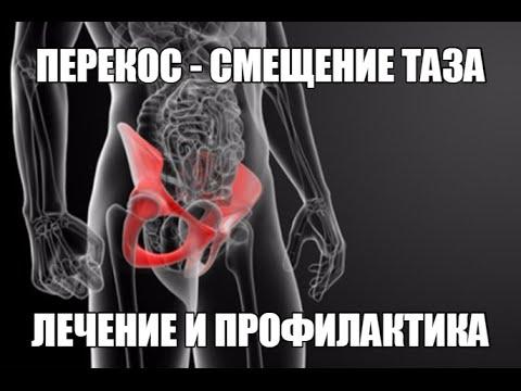 СМЕЩЕНИЕ - ПЕРЕКОС ТАЗА. Специальная ГИМНАСТИКА для ЛЕЧЕНИЯ и ПРОФИЛАКТИКИ