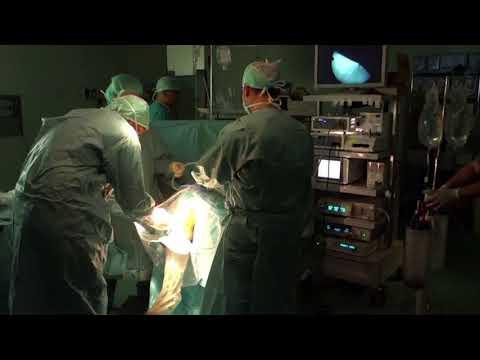 Trattamento di distorsioni tendini dellarticolazione della spalla
