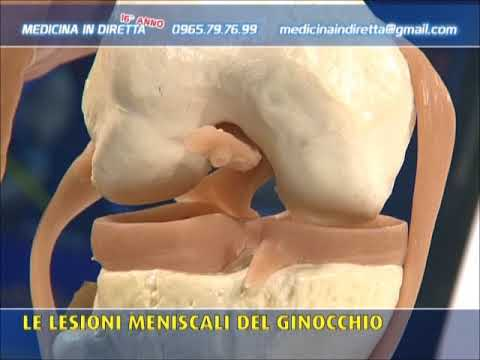Osteocondrosi della colonna lombare con una sporgenza