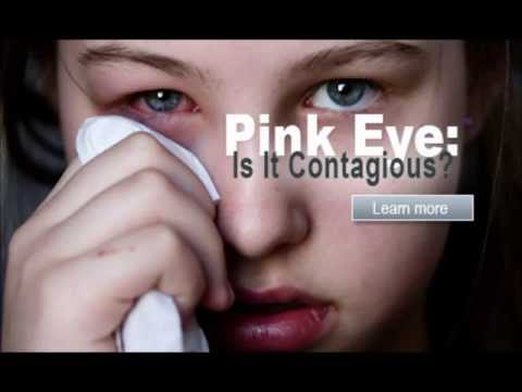 Video how to get rid of pink eye - conjunctivitis treatment | how to get rid of pink eye fast