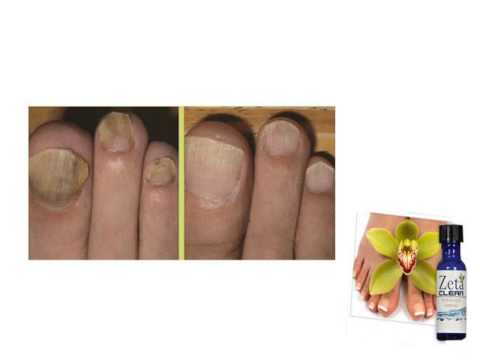 Als die Nägel auf den Beinen von der Verdunkelung zu behandeln