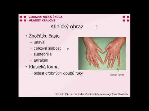 Artroză comună