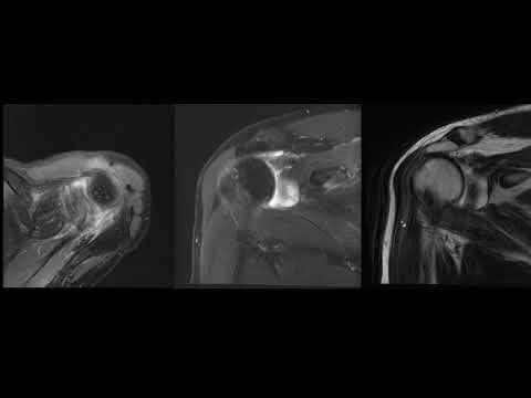 Подробный анализ МРТ плечевого сустава