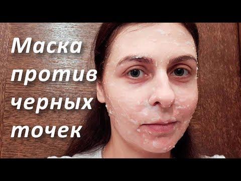 Маска от черных точек на лице | Сода и соль от черных точек