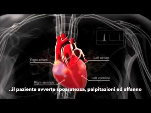 Che cosa è lipertensione infanzia