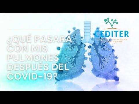 Nuestros expertos responden que debes esperar después de la infección por COVID-19