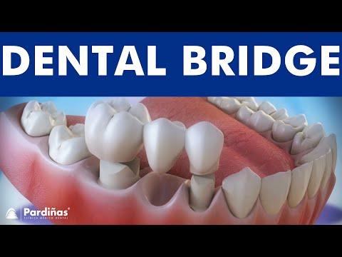 Dental bridge - Fixed dental replacement ©