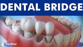 Dental bridge ©
