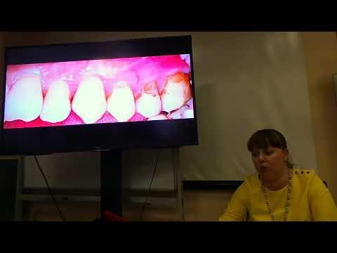 Хирургическое лечение рецессий десны в области зубов и имплантатов. Часть 23