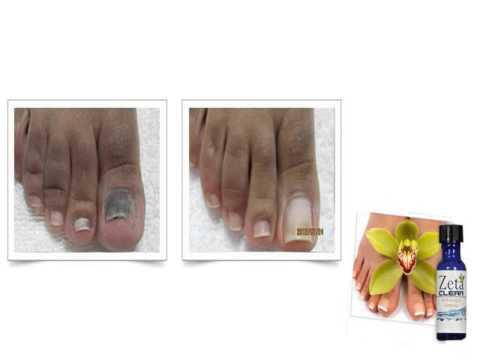 Die Volksmittel von gribka der Nägel auf den Beinen die Rezensionen