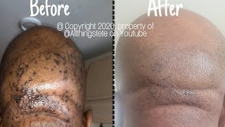 HOW TO REMOVE RAZOR BUMPS (EASY, QUICK AND SIMPLE METHOD!) #howto