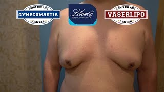 Gynecomastia Vaser LipoSculpture & J-Plasma🔥Male from United Kingdom 🇬🇧 - Dr. Lebowitz