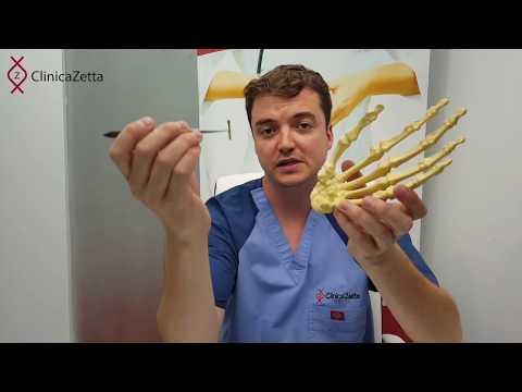 O durere articulară la șold