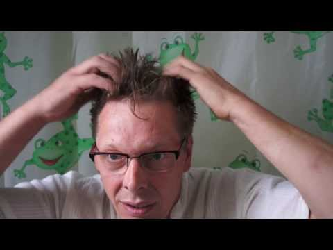 Prolapsed Wirbelsäulenbruch Behandlung ohne Operation