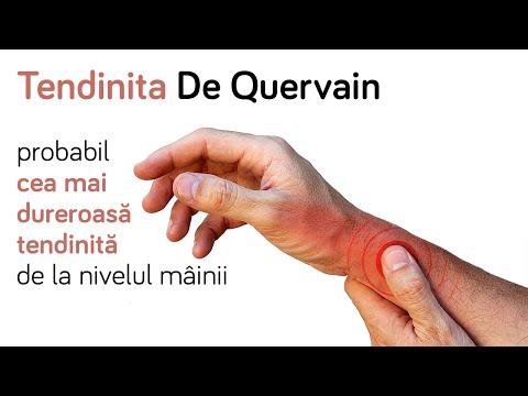 Un curs de tratament pentru artroza cu medicamente