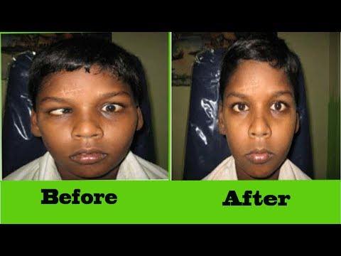 Ankho Ka Bhengapan Ka Ilaj - Treatment Of Squint Eyes Problem | Squint Eye Problem Surgery