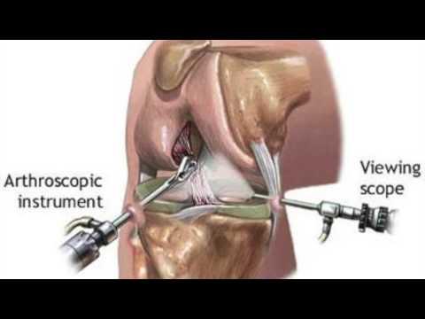 Tratament articular artro