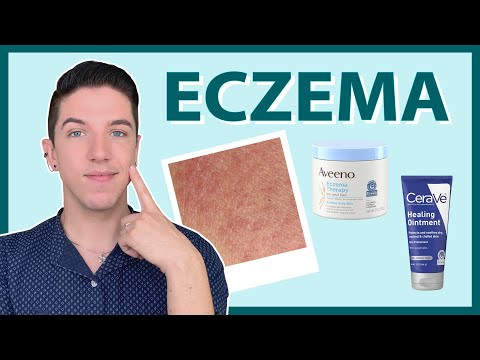 Eczema- How to Treat & Get Rid of It