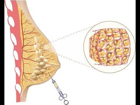 El aumento del pecho sin operación. El foro