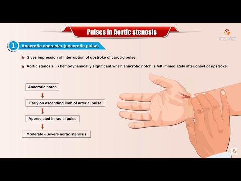 Tętno w zwężeniu aorty