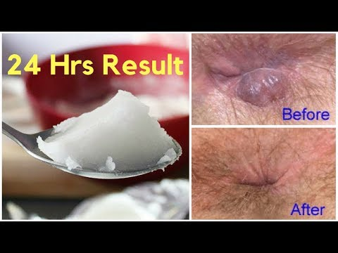 Top 5 Home Remedies to Cure Hemorrhoid Naturally and permanently
