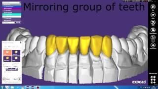 Exocad: зеркальное копирование группы зубов