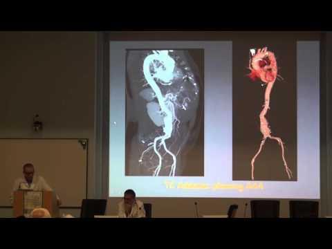 Prostata analisi secrezione decodifica