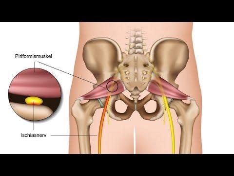 Schlaganfall Rückenschmerzen