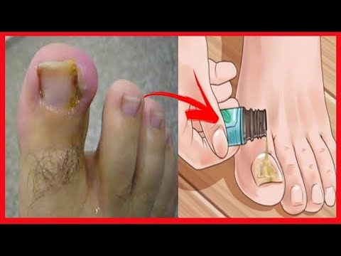 De que se desarrolla el hongo de las uñas