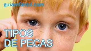 Distinguir los distintos tipos de pecas