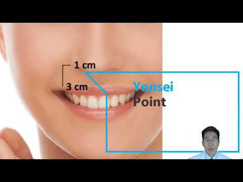 Advanced Botox Injection Techniques for Dentists | Part 2: Gummy ...