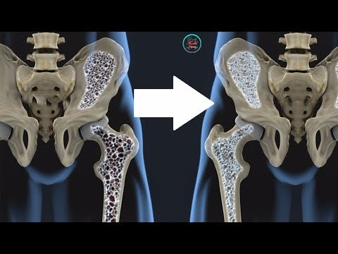 Video 12 Foods That Treat Osteoporosis and Promote Strong Bones!