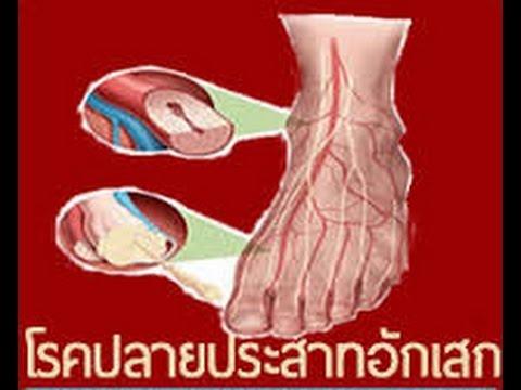 Makatsaria การเกิดลิ่มเลือดอุดตันและ