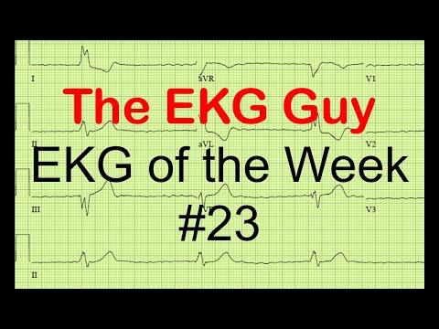 EKG of the Week #23