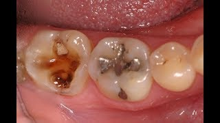 NO NEED TO VISIT THE DENTIST.  TREAT TOOTH DECAY & CAVITY AT HOME  WITH THIS POWERFUL INGREDIENT