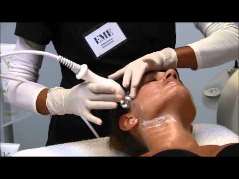 Elettrizzazione di trattamento di varicosity
