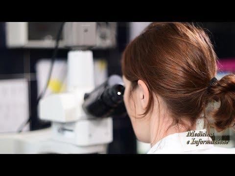Succo prostata analisi decodifica muco