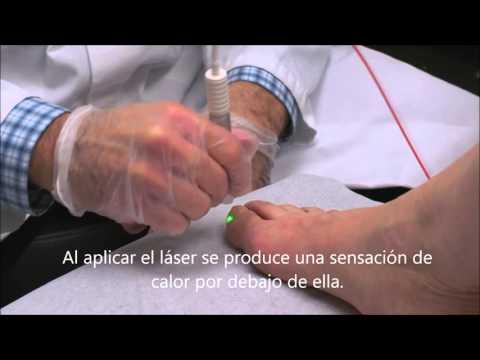 Batrafen el barniz el preparado para el tratamiento del hongo de las uñas