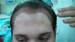 Dr. Jeffrey S. Epstein Hairline Procedure with 2750 grafts