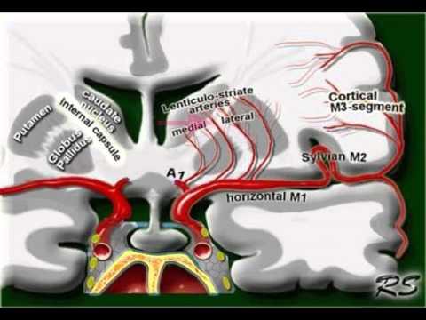 Inflamația artritei cum să tratezi
