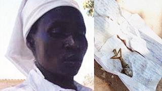 ZIMBABWE WOMAN GIVES BIRTH TO A FROG BABY