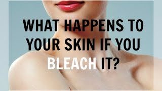 What Happens To Your Skin If You Bleach It?