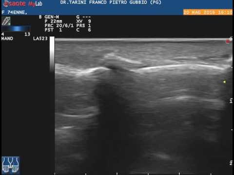 Ciò che r-grafia dellarticolazione del ginocchio