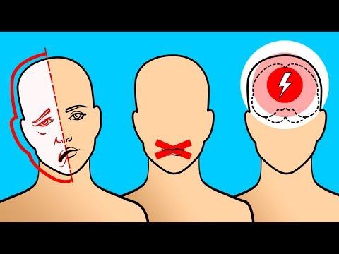 Atenção: 6 Sinais de um Possível Derrame