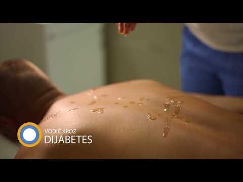 Osip kod dijabetesa bolesti
